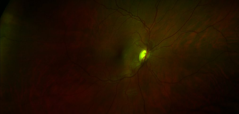 My right retina