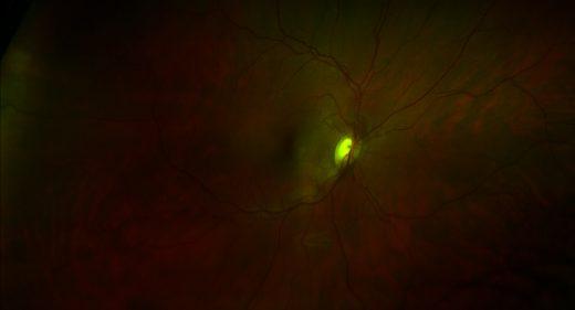 My right retina