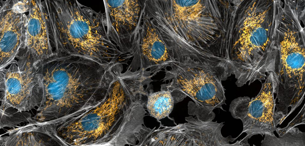 Golden mitochondria